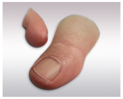 Traces of finger prostheses