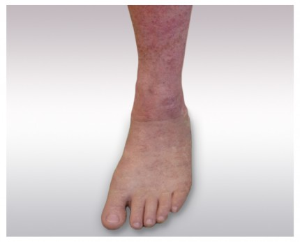 Foot prosthesis