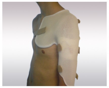 Shoulder-humerus individual splint