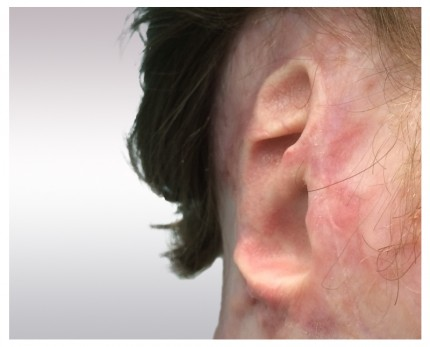 Ear prosthesis example 1